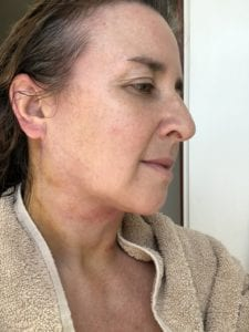 Gravity, Collagen, and a New Lower Face Lift - In The Groove